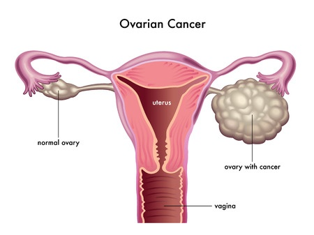 Ovarian Cancer - Image Copyright dramedical.com